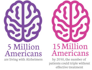Coffee and Alzheimers
