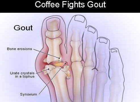 Proven Health Benefits Of Coffee You Didnt know