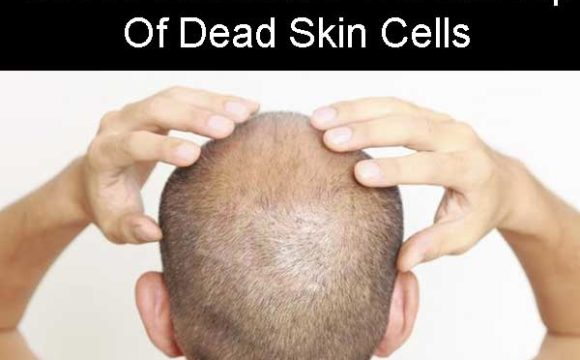Coffee Eliminates The Buildup Of Dead Skin Cells