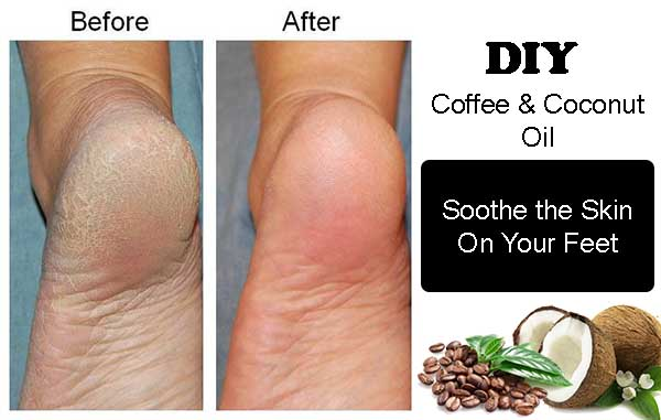 coffee skincare treatments for feet